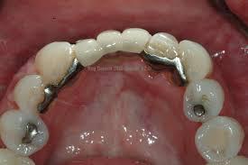 Latest News Archives - Sedona AZ Dentist