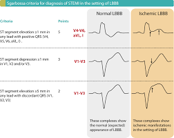 Stemi Leads Chart Stemi St Elevation Myocardial Infarction Diagnosis