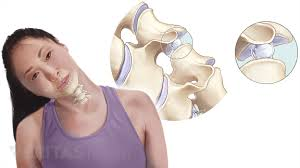 Whats A Facet Should I Worry About My Neck Cracking