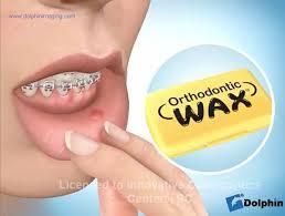 emergencies innovative orthodontic