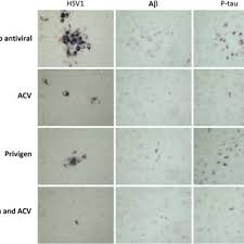 Effects Of Combined Acyclovir And Privigen Treatment On Hsv1
