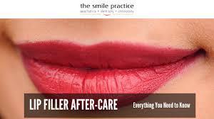 lip filler after care
