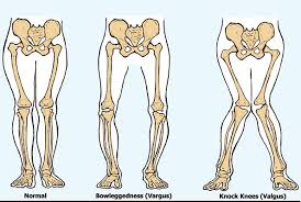 valgus dog. an illustration of the different types knee alignments. valgus dog i