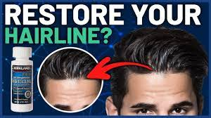 does minoxidil work on frontal hairline
