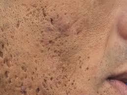Image result for ice pick scar