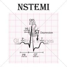 Ecg Of Non St Elevation Myocardial Infarction Nstemi An Gl