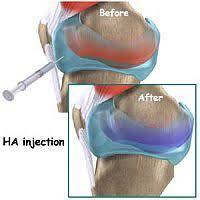 Hyaluronzuur knie injectie