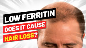 low ferritin hair loss is there a