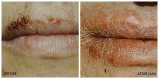 herpes simplex of the lips the very