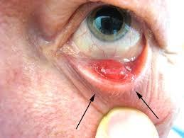 eyelid lumps ps cysts styes skin