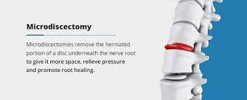 spine surgery when it works and when