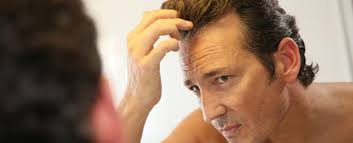 can rogaine minoxidil make hair loss