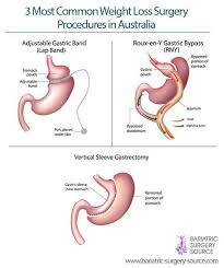 weight loss surgery australia all you