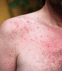 Sun Poisoning Rash – Treatment What to Do & How to