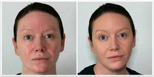 the photo on the left is of me bare faced with just moisturiser on and the one on the right is of me with the pur minerals