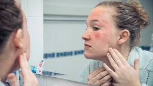 Common Skin Rashes | Skin and Beauty Center | Everyday Health