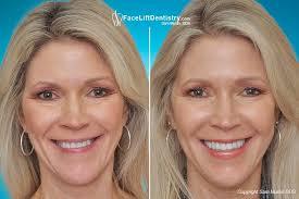 correcting a worn slanted crooked smile