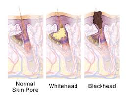 Pimples On Body Chart Acne Wikipedia