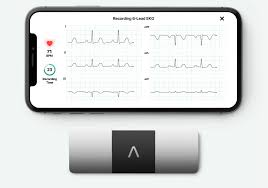 Alivecor And Huami Partner For Next Generation Medical
