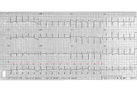 Abnormal Ecg Pattern