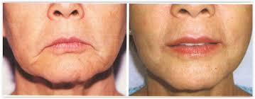same 73 year old patient following lip lift and fillers dr f d parsa m d