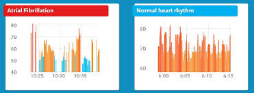 Ai Equipped Apple Watch Can Detect Irregular Heartbeat And