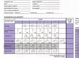 Gestational Age And Newborn Reflexes Assessment Of Neuromuscular Maturity