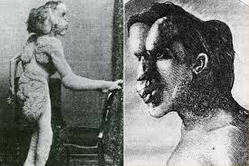 the elephant man. Simple The Modal Trigger Joseph Merrick Aka The Elephant Man For Man T