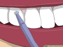 image led apply tooth gems step 13