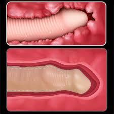<b>Reusable Condoms</b> For <b>man Male Penis</b> Sleeve Extender Dildo ...