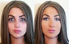 hide dark circles before after
