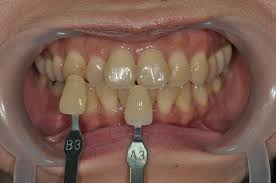 Cases Of In Office Bleaching Prestige Dental Care