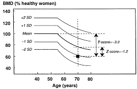 Assessment Of Bone Mineral Density In A 70 Year Old Woman