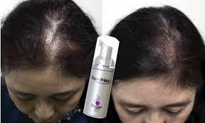 60日で効果を実感女性用育毛剤ラピッドヘアを実際に使ってみた