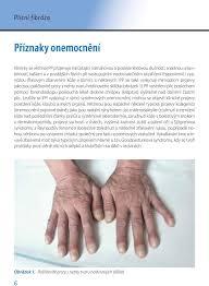 Jak Léčit Plicní Fibrózu Plicní Fibróza Doc Mudr Martina Vašáková