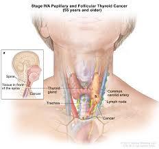 Thyroid Anatomy General Surgery Thyroid Cancer