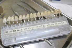 Feda Directions Teeth Whitening Chart B1