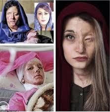 Les féministes U.S, pétitionnent contre Delon, … mais elles sont très très  silencieuses sur le sort de femmes afghanes, où en Inde (les vitriolées),... et aussi sur celui des enfant affamés!  dans Non classé
