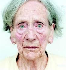 Resultado de imagem para demencia
