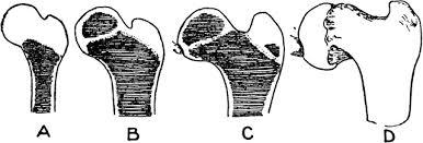 Coxa Vara Ossification Of The Femur And The Condition Of Coxa Vara