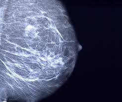 Image result for breast cancer mammogram