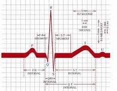 Ecg Chart Labeled Go Back Gallery For Ekg Labeled Diagram Chart Line Chart