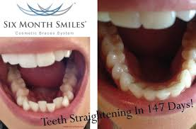 front teeth filing before and after. six month smile cosmetic braces system front teeth filing before and after