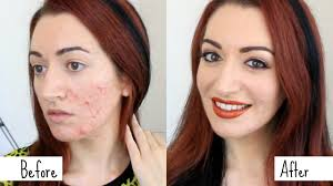 easy acne scarring coverage grwm how to cover acne makeup transformation