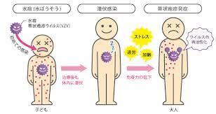 帯状 疱疹 子供 に うつる 確率