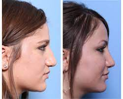The surgery may be covered if it is done to correct a medical problem, such as a nasal obstruction. Rhinoplasty Chicago Dr George Moynihan Nose Job