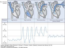 Basic Hemodynamic Monitoring In Obstetric Patients Obstetric