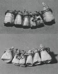 Зашинированные зубы век до н э Стоматология > Статьи и  Фронтальный и задний вид мостовидного протеза нижней челюсти Четыре натуральных резца и два вырезанных из слоновой кости зуба скрепленные золотой проволкой
