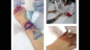 apagar tatuagem