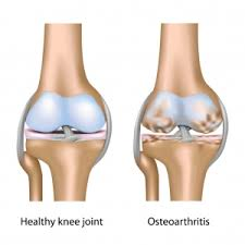 Image result for OSTEOARTHRITIS(OA)